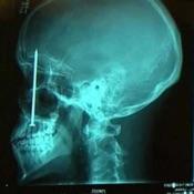 X-rays Mobile App Icon