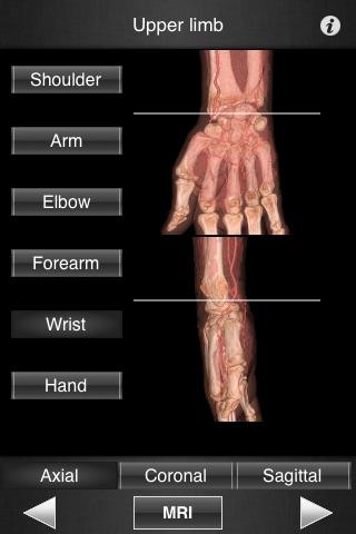 Monster Anatomy - Upper Limbのおすすめ画像1