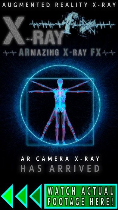 X ray fx app