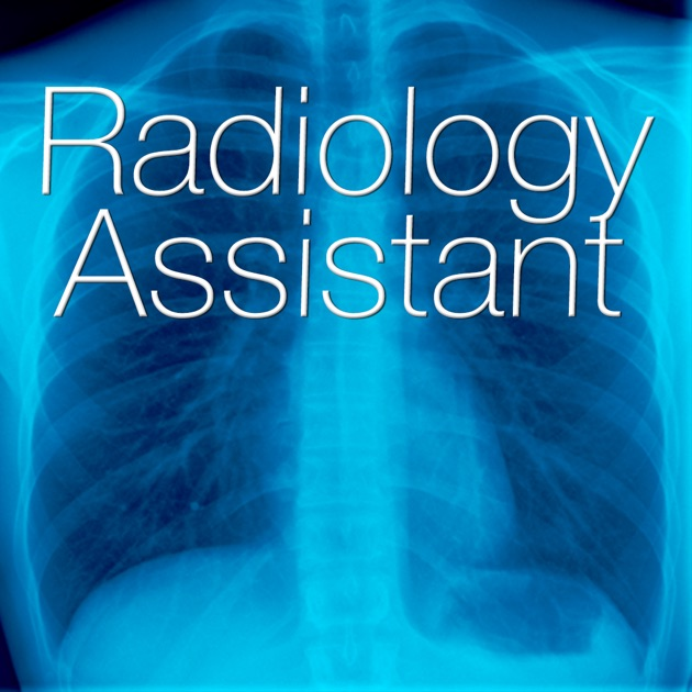 Radiology Assistant  Medical Imaging Reference. Athlete's Foot Signs. Things Signs Of Stroke. Traffic Dubai Signs Of Stroke. Dance Signs Of Stroke. Garlic Signs. Pain Signs. Asbestos Signs Of Stroke. Differential Diagnosis Signs