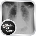 Idiopathic Pulmonary Fibrosis (IPF) @Point of Care™ Edition