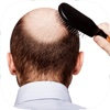 Best Hair Transplant Pre-Procedure,  Preparation and Process Guide & Tips Made Easy for Beginners