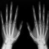 Radiografía Glosario y Grupos de tarjetas
